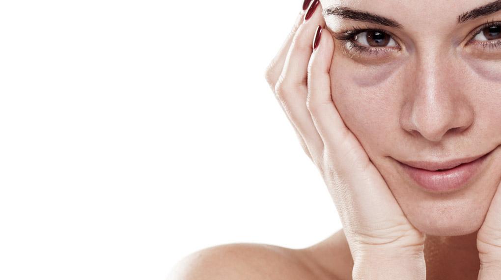Blaue Augenringe: Ursachen Und Was Wirklich Hilft
