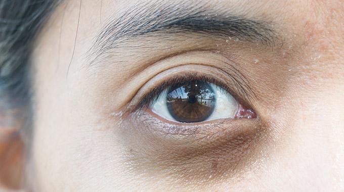 Braune Augenringe
