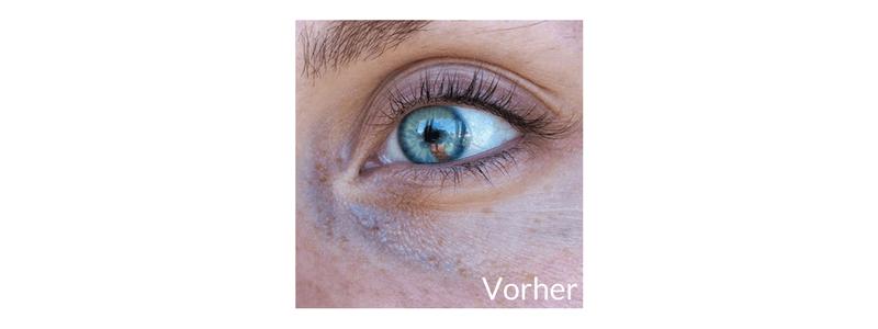 Dark_Circle_Treatment_Ergebnis_2_Vorher