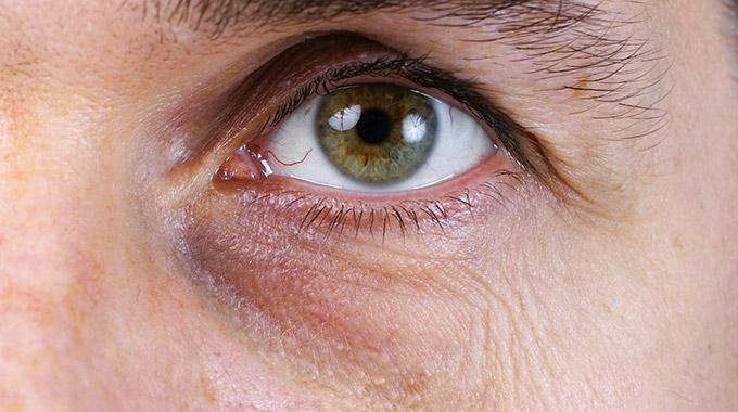 Braune und blaue Augenringe als Mischform