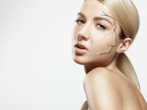 Feuchtigkeitsarme Haut