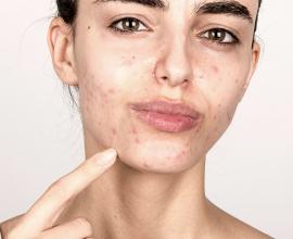 Unreinheiten Und Co Makellose Haut Statt Unterlagerungen