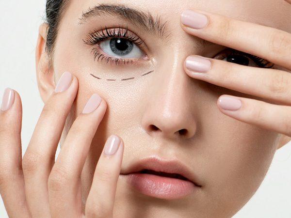Ästhetische Maßnahmen gegen Augenringe wie Augenringe Unterspritzen