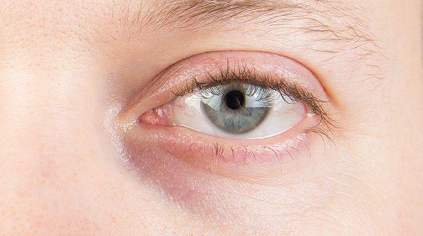 Augenringe mit blau lilaner Verfärbung