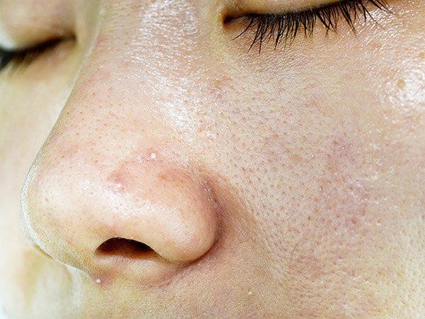 Fettige Haut mit Unreinheiten, Pickeln und erweiterten Poren