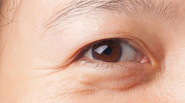 gelb-braeunliche_Augenringe