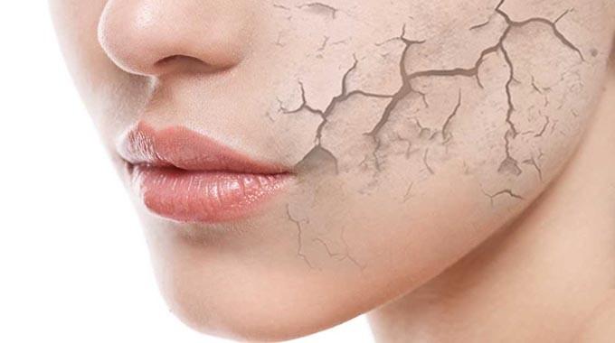 Feuchtigkeitsarme Haut Test